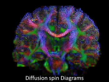 Brain wiring diagram made by high-definition fiber tracking magnetic resonance imaging (HDFT MRI) of water diffusion. The technique is useful for studies of traumatic brain injury.